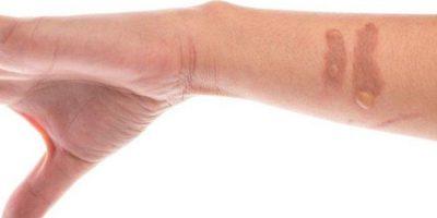 Tips Tangani Luka dan Mencegah Bekasnya